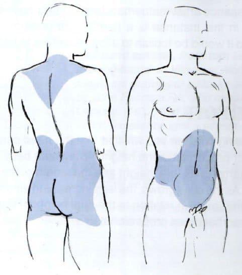 Распределение жира у мужчины